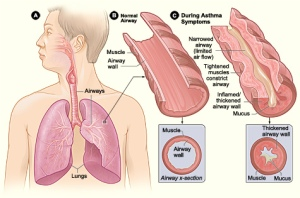 Allergic rhinitis 1