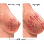 Breast-Engorgement2