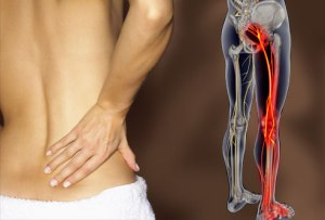 sciatica-_lower_back_pain