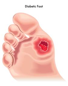 diabetic-foot-04