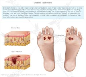 diabetic-foot-05