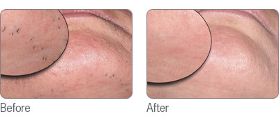laser-hair-removal2