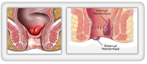 hemorrhoid-09