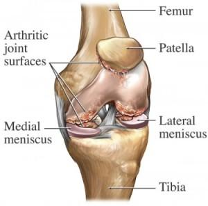 knee-pain 01