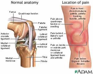 knee-pain 02