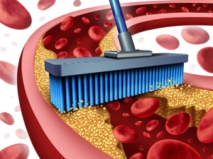 cleaning-arteries