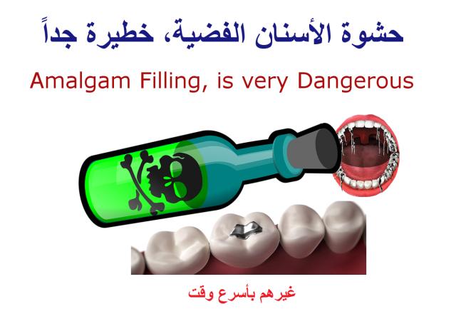 Amalgam Filling, is very Dangerous