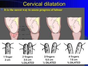 Cervical Dilation 05
