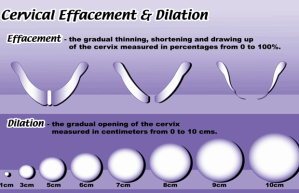 Cervical Dilation 06