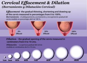 Cervical Dilation 07