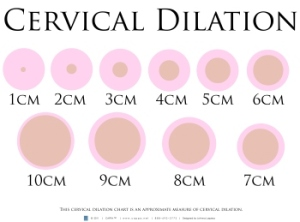 Cervical Dilation 16