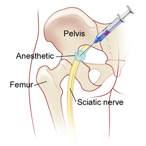 sciatic-nerve-injection-3