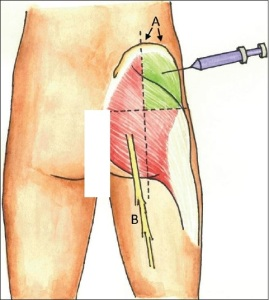 sciatic-nerve-injection