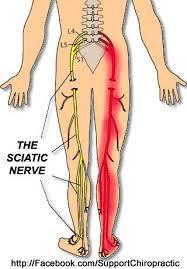 sciatica-nerve